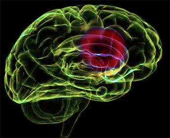 Jak radzić sobie z udarem mózgu